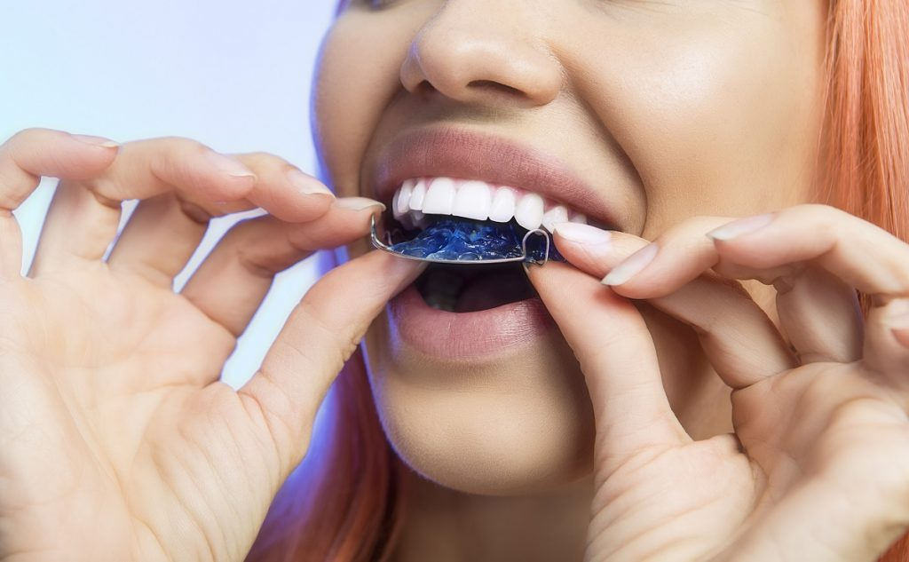 Woman putting on retainers