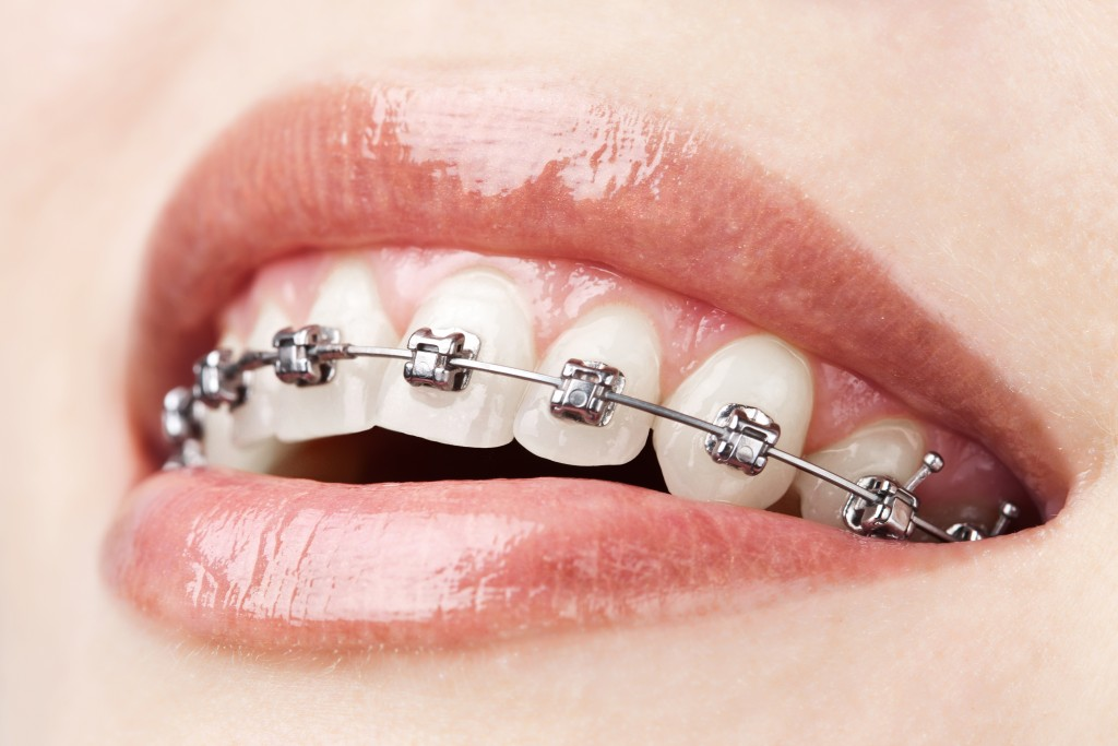 a smile with braces