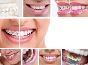close up of dental braces
