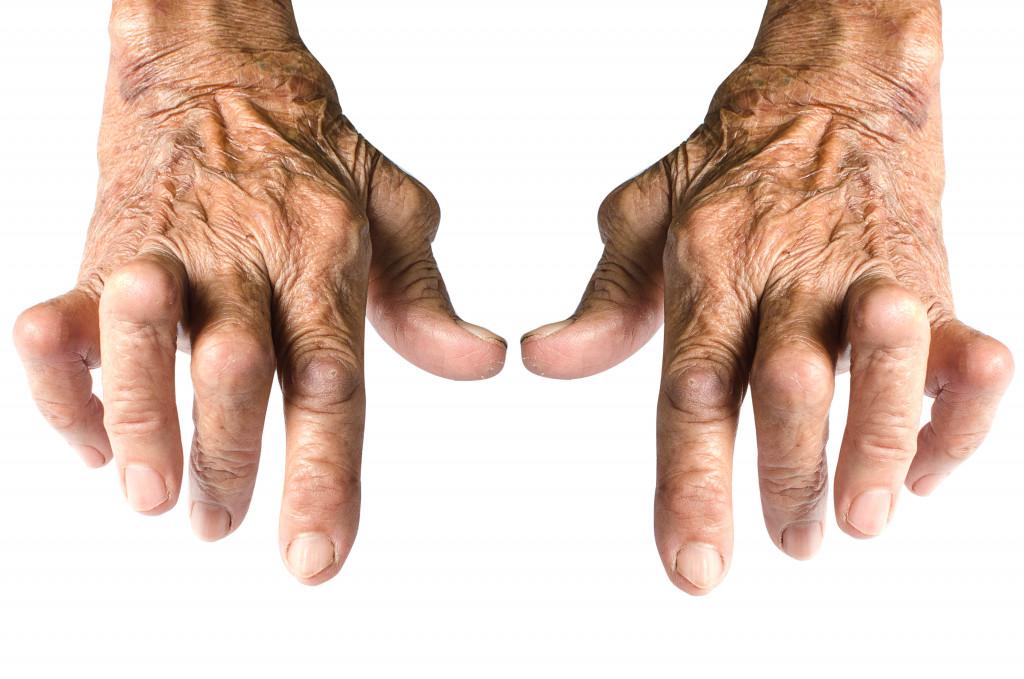 arthritis on hands